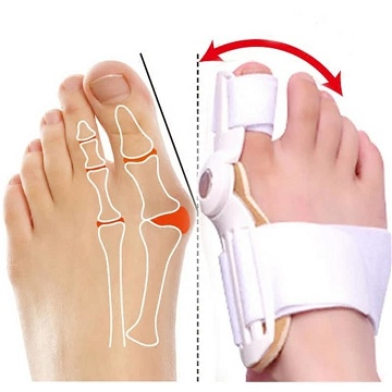 "جبيــرة الاصـبع ""Splint for Bunions"""